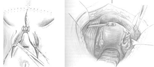 Genitalrekonstruktionen Frau